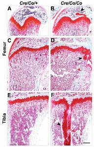 Pten Deficiency Causes Dyschondroplasia In Mice By Enhanced Hypoxia