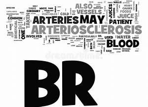Arteriosclerosis Stock Illustration  Illustration Of
