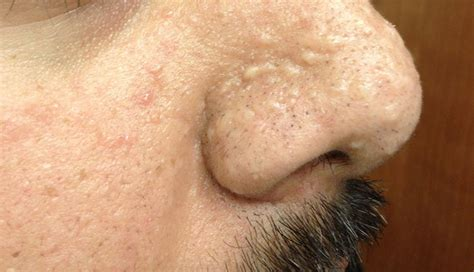 derm dx small papules   nose  cheek clinical