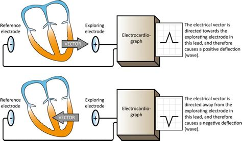 The ECG leads: electrodes, limb leads, chest (precordial