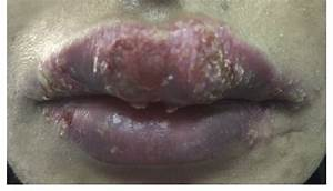 A Clinical Picture Of The Lips Showing Upper Lip Swelling