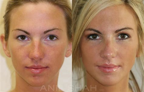 rhinoplasty pictures facial plastic surgery chicago il