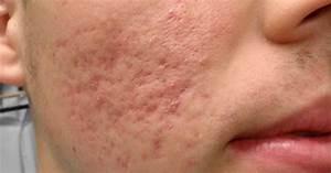 Como Quitar Las Cicatrices De Acne