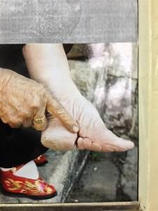 Chinese Foot Binding Infection Wwwpixsharkcom Images