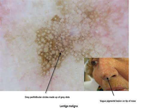 Dermoscopy Made Simple Lentigo Maligna