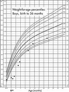 Height Weight Chart Cystic Fibrosis Presenting As Kwashiorkor In A Sri Lankan
