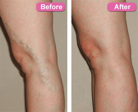 45 Bleeckern Houston  Varicose Veins Treatment In Houston Tx. Paul And Jerry S Self Storage. Email Mastercard Gift Card Proxy For Windows. Insurance Claims Systems Temporary File Share. Jeep Dealership Philadelphia. Web Design Templates Wordpress. Easy Associate Degree Programs. Injured In Car Accident Federal Law Attorneys. Cheap Incorporation Online Book Mark Printing