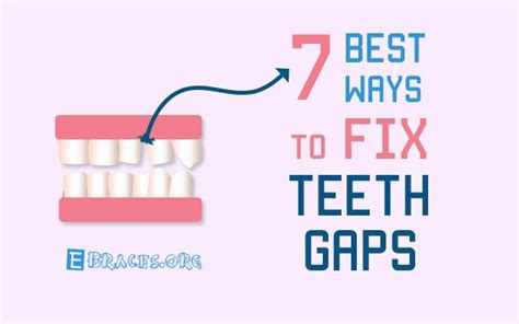 how to fix gaps in teeth these 7 best non ways