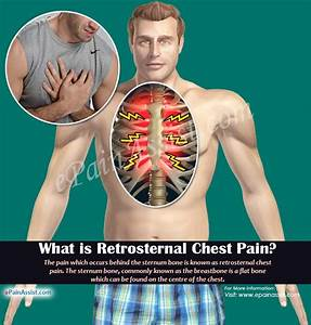 Retrosternal Chest Pain