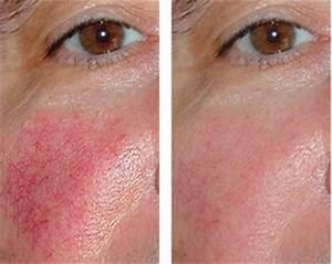 Couperose behandeling uitgevoerd door huidtherapeuten