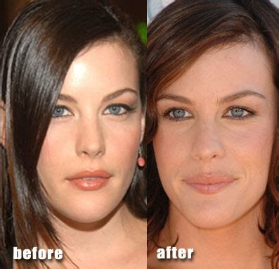 Celebrity Plastic Surgery Before And After  Funnymadworld. Storage Containers That Lock. Software Portfolio Management. Does Medicaid Cover Weight Loss Pills. Medical Transcription School Online. Fiberglass Window Prices Plumbers Kansas City. The Masters School Simsbury Free Ehr System. Mohela Student Loan Consolidation. Taleo Universal Profile Ubuntu Benchmark Tool