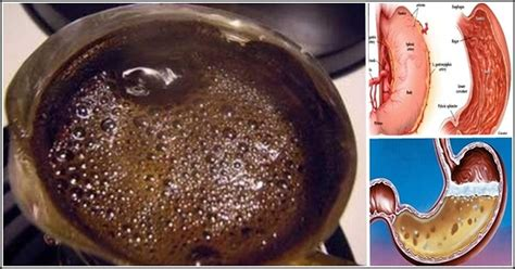 Vomitus ejected matter from the stomach and upper gi tract which often follows nausea; See What Happens When You Drink Coffee On An Empty Stomach