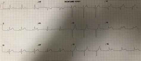 dr smiths ecg blog   year   chest pain