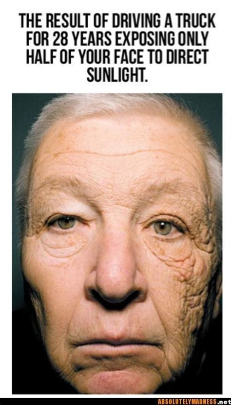 Look at what sun damage can do! This gentleman was a truck