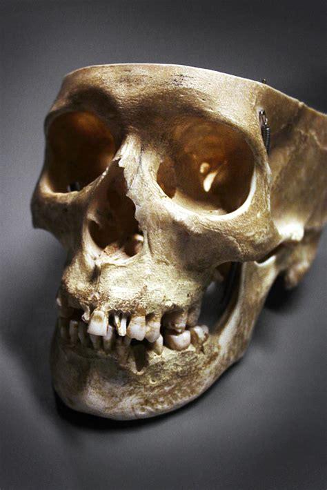 Skull Nature Morte Uffejakobsen Deviantart