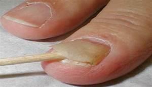 Чем вывести грибок из ногтя