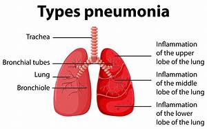 Diagram Showing Types Pneumonia