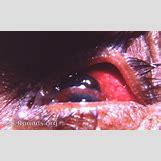 Cataract Surgery | 474 x 290 jpeg 31kB
