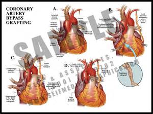 Coronary Artery Bypass Grafting - S&A Medical Graphics - S&A Medical ... Coronary Artery Bypass Graft