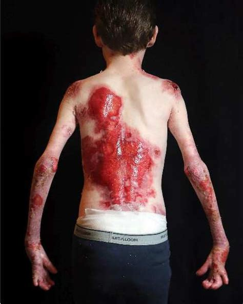 boy   butterfly child  rare skin condition