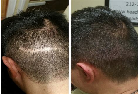 Hair Implants Yonkers Ny 10702 Scalp Micropigmentation Nyc Gallery Headstrongny