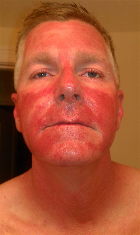 blue light treatment for sun damage fluorouracil vs blue light for skin pre cancer cancer