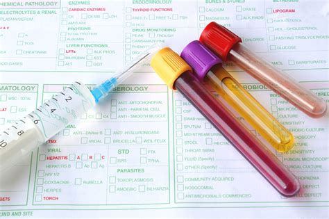 laboratorio test serology isla lab productsisla lab products