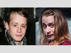 The Heartbreaking Celeb Faces Destroyed by Drugs! Wise