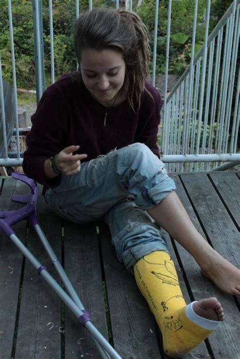 Leg Castslc Leg Cast It Cast Legs