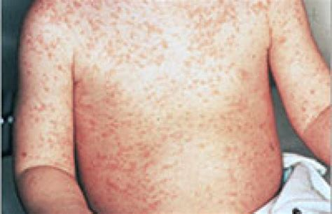 Measles Images Health Addresses Measles And The Importance Of