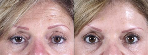 become a botox injector