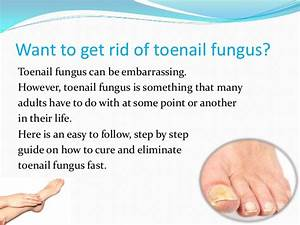 How To Cure Toenail Fungus Quickly