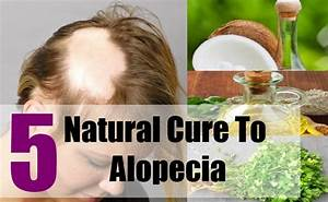 5 Natural Cure For Alopecia Natural Treatments Cure
