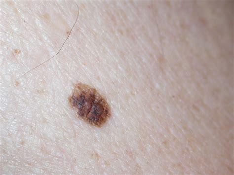 melanooma euromelanoma
