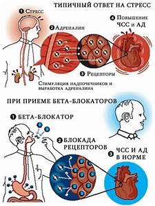 Артериальная гипертония в вологодской области