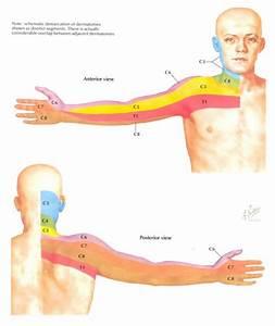 Hernia cervicaal