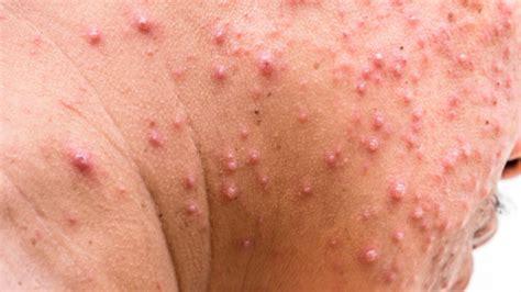 die guertelrose  kopf  tun gegen herpes