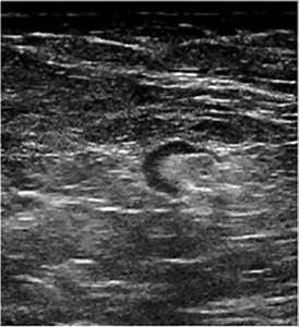 B  Ultrasound Image Of The Same Patient U0026 39 S Left Axillary