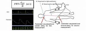 Measurement Of Carotid And Femoral Pulse Wave Velocity