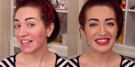 Best Cover Up Makeup How To Cover Up Acne Scars With Makeup Makeup Tutorial