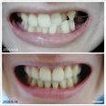 【矯正牙齒】牙套日記5~終於拆牙套了!戴維持器、前後差異牙齒模型 (內有牙照請慎入) – ㄚ兔到處趣