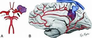 Aneurysms Associated With Brain Arteriovenous