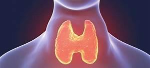 Goiter Symptoms  Risk Factors  U0026 Treatment