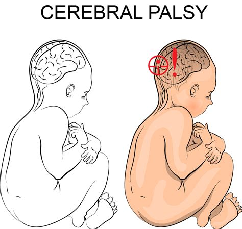 Faq How Can I Tell If My Child Has Cerebral Palsy