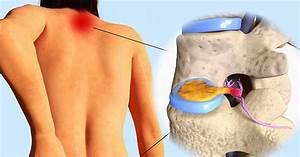 Натуральное средство от болей в суставах