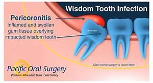 Wisdom Tooth Infection  Pericoronitis  In Ventura  Ca