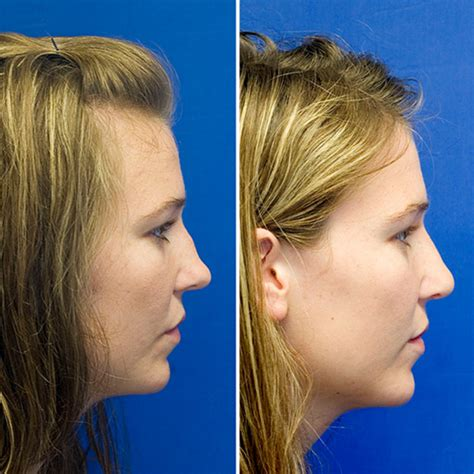 saddle nose deformity rhinoplasty in seattle