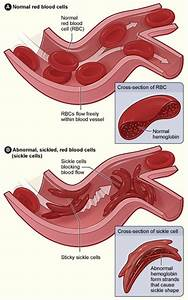 Sickle Cell Anemia  Definition  U0026 Explanation