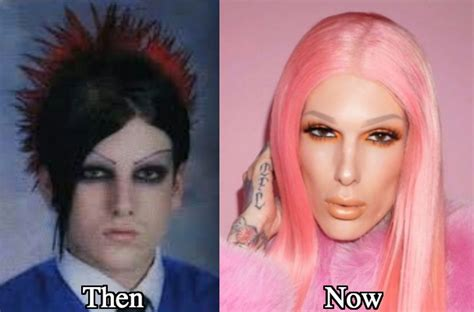 Jeffree Star Before And After