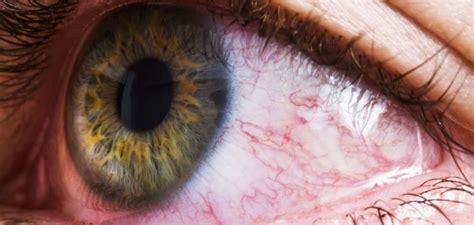 cannabis  occhi rossi    affrontare leffetto